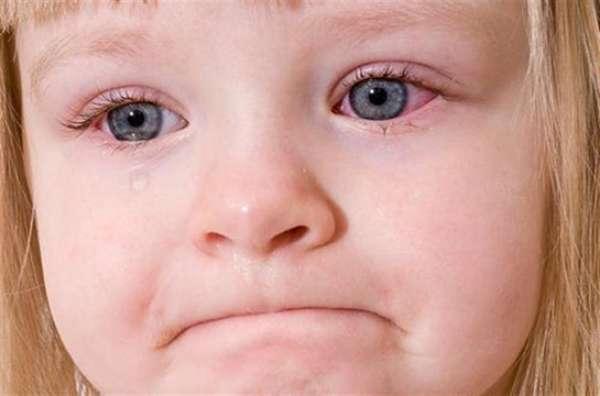 Çocuğunuzun gözü sulanıyorsa dikkat!