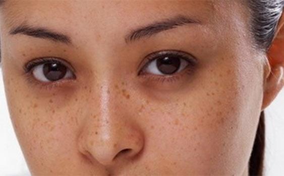 Göz altı morluklarları nasıl tedavi edilir?