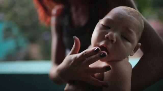 Zika virüsü 2,2 milyar kişiyi tehdit ediyor