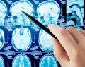 ALS ile ilgili büyük gelişme: NKE1 geni bulundu
