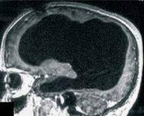 Beyninin %90'ı olmayan adam bilim dünyasını şaşırttı