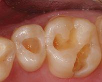 Diş dolgusu tarih mi oluyor?