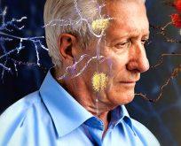 Alzheimer'in belirtileri nelerdir?